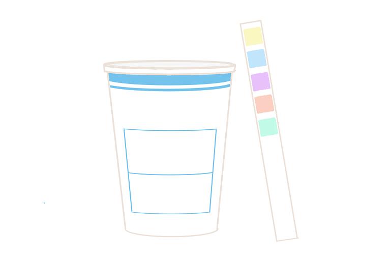 尿検査の異常